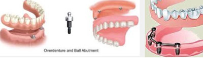 Implant Supported Dentures